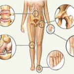 Подагра - лечение народными средствами